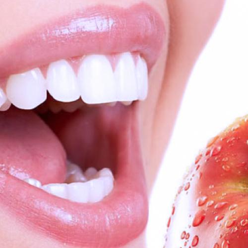 Металлокерамика, Отбеливание зубов